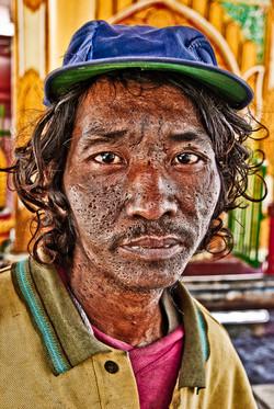 Pock Marked Man, Pyay, Myanmar 2008