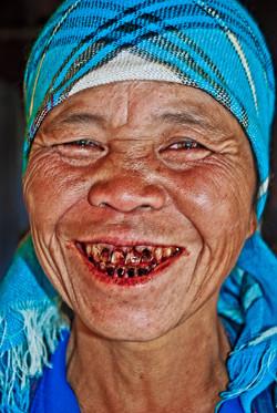 Woman with Black Teeth, near Kyaing Taung, Myanmar 2008