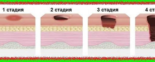 Уход за лежачим человеком: стадии пролежней и способы их профилактики