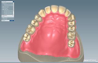 FDS (full denture system), scannen, konstruieren, fräsen zur Anprobe mit amanngirrbach ceramill, aus Unna / Dortmund