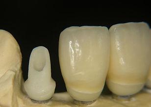 individuelles Zirkonabutment mit Zirkonkrone und Keramikverbelndung, nicht monolithisch oder Vollkeramik, bei hervorragendem Randschluss, dass ist Zahntechnik aus Dortmund
