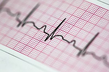 cardiologista em itabuna