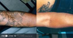 BA_Revlite_Tattoo Removal_Forearm_B Saal