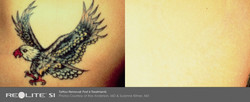 BA_Revlite_Tattoo Removal_Anderson_Kilmer_Post6tx