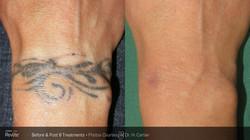BA_Revlite_Tattoo_H_Cartier_Post8Tx