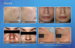 skin_renewal_email_results_600x385