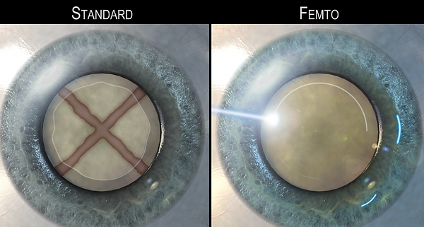 STANDARD vs FEMTO CATARACT SURGERY.png