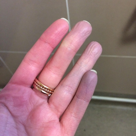 Raynaud's Phenomenon and Chillblains