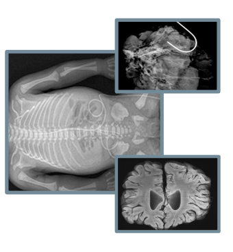Digital X-ray imaging with XPERT 80-80L
