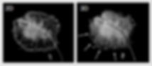 2D and 3D Tomosynthesis of Excised Breast Tissue
