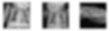 Neonatal radiology images taken with Kub-250