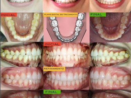 יישור שיניים עם קשתיות שקופות קריסטל אליינר