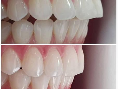 טיפול יישור שיניים שקוף - קריסטל אליינר