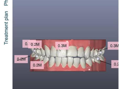 תכנון דיגיטלי ליישור שיניים שקוף של קריסטל אליינר