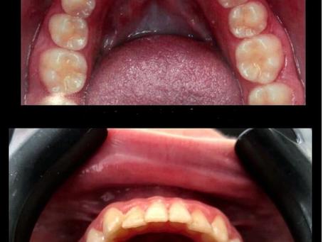 טיפול נוסף של יישור שיניים שקוף עם קריטל אליינר