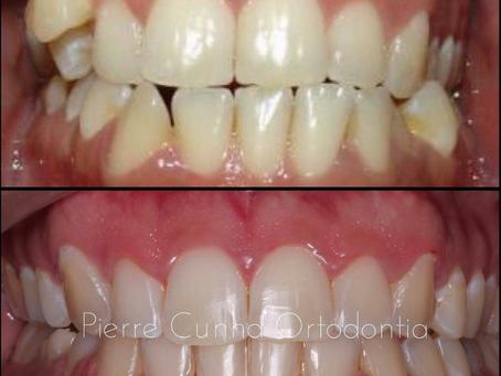 תוצאה טיפול יישור שיניים שקוף