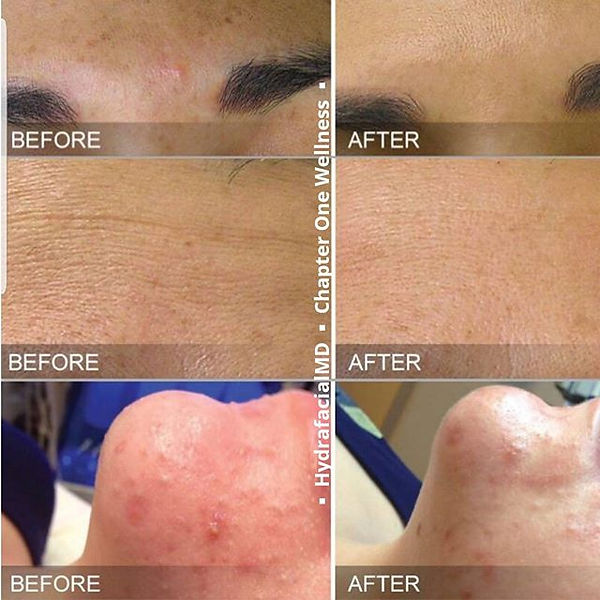 #finelines #darkspots and #blemishes suc