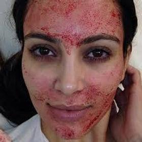 vampire facial.jpg