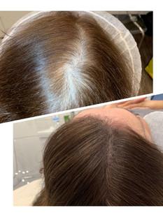 female scalp.jpg