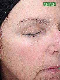 Body Treat boutique Vi Peel treatments
