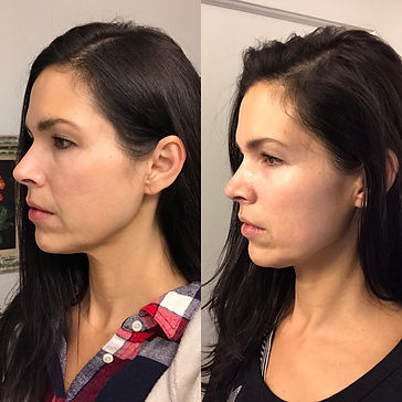 Revolutionary Best-In-Class Vivace Microneedling RF Treatment available at Body Treat in Marin