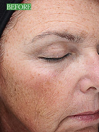 Sun damage, aging and wrinkle threapy to improve your appearance