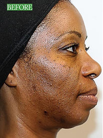 Improve your skins appearance with our Aesthetic treatments