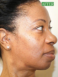 Improved tone, texture, aging and scar damage at Body Treat