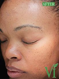 Body Treat Vi facial peels for sensitive skin