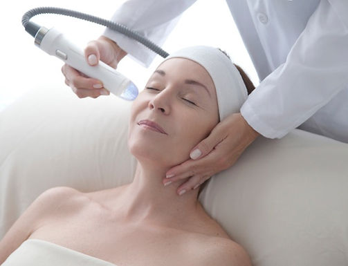 The Best Vivace Microneedling in Marin County