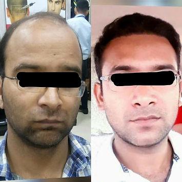 microhair transplant.jpg