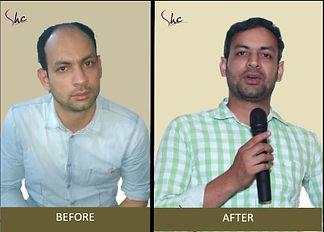 hair transplant.jpg