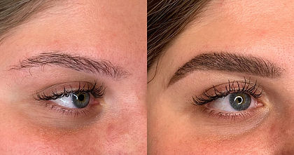 eyebrow transplant.jpg