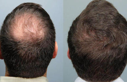 PRP therapy for hair growth – An effective treatment