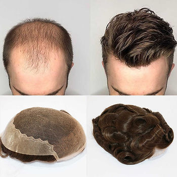 NON SURGICAL HAIR REPLACEMENT.jpg