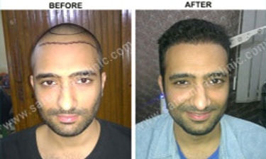 fue hair transplant.jpg