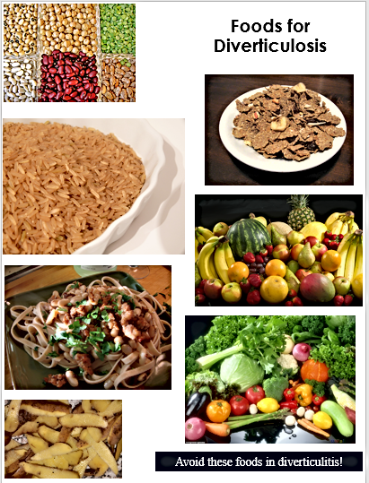 Foods for diverticulosis