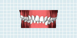 Rapid Smiles Indirect Image 1.jpg