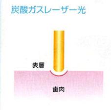 大田区仲六郷 雑色駅の歯医者 原歯科医院 歯科用レーザー