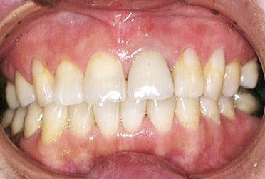 歯周病について (2)歯ぐきについて