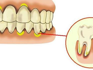 歯周病について (4)歯周炎