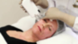 Inracel Procedure