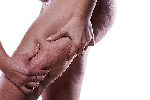 Young-woman-holding-and-pinching-cellulite-on-her-leg.jpg