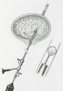 ureterorr-rigida.jpg