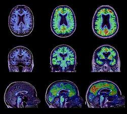 alzheimer disease.jpg