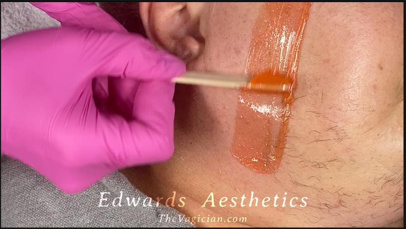 Waxing Womans Facial Hair - Hormonal Hair-