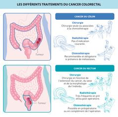 Les différents traitements du cancer colorectal
