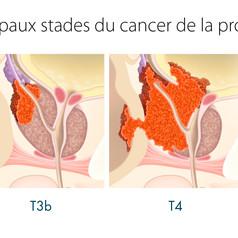 Cancer de la prostate 4