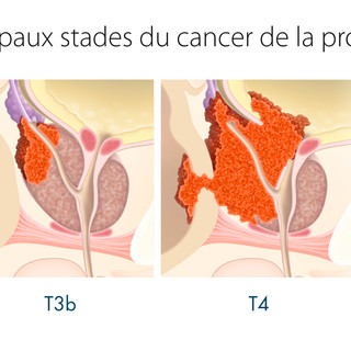 Cancer de la prostate 4