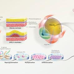 Greffe de cellules pour réparer la rétine
